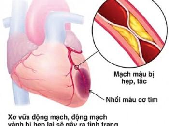 Bệnh hẹp mạch vành và những điều nên biết