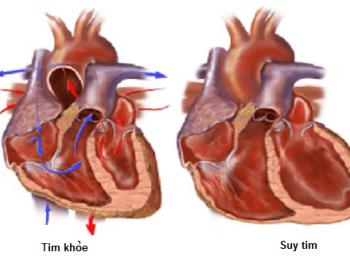 Cập nhật về phân độ suy tim hiện nay
