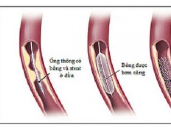 Lời khuyên sau đặt stent mạch vành