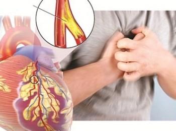 Cơ chế gây nên bệnh mạch vành