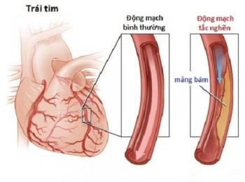 Các phương pháp điều trị bệnh mạch vành