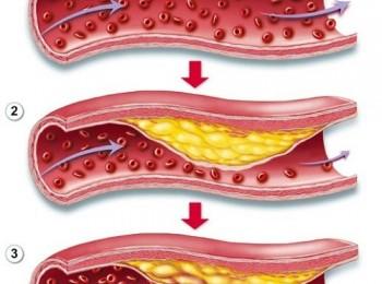 Nguyên nhân dẫn đến nhồi máu cơ tim