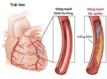 Bệnh suy tim trái- Nguyên nhân và triệu chứng