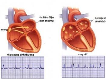 Nhịp tim bình thường của trẻ em là bao nhiêu? Lưu ý khi nhịp tim không bình thường