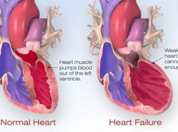 Suy tim cấp – nỗi lo thường trực của những bệnh nhân tim mạch
