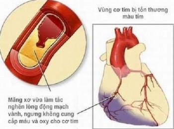 Thiếu máu cục bộ cơ tim và các biến chứng