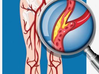 Bệnh động mạch ngoại vi mãn tính