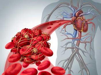 Dấu hiệu cảnh báo nguy cơ huyết khối gây tắc nghẽn mạch máu