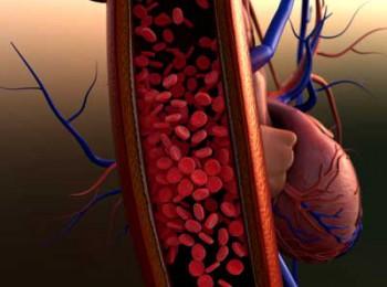 Cơ chế hình thành huyết khối - kẻ thù của bệnh nhân tim mạch