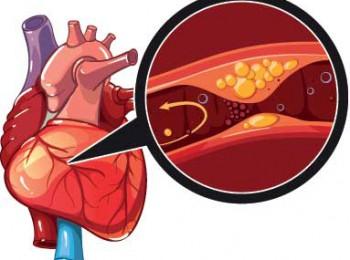 Những biện pháp giúp ngăn chặn nguy cơ gây bệnh động mạch vành