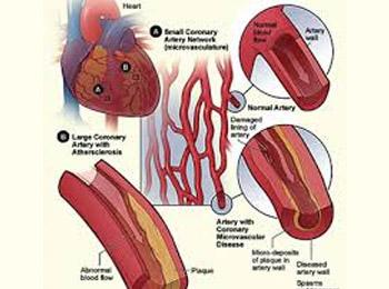 Những nguyên nhân, triệu chứng, cách phòng bệnh xơ vữa động mạch