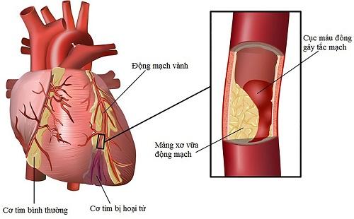 Bệnh động mạch vành nên ăn gì để có sức khỏe tốt nhất?