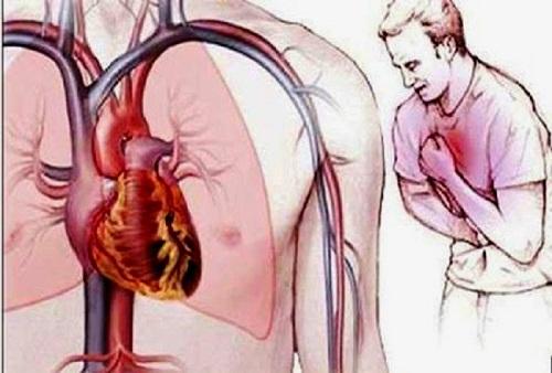 Cơn đau thắt ngực trong bệnh mạch vành