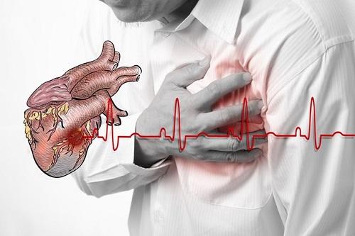 Những biến chứng của nhồi máu cơ tim