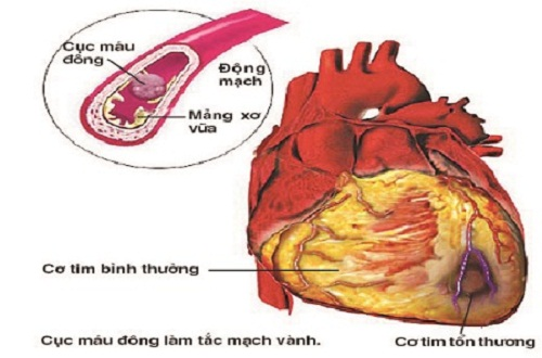 Thiếu máu cơ tim có thể dẫn một số biến chứng nguy hiểm