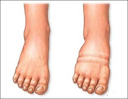 Phù chân có thể là dấu hiệu bệnh tim mạch ở người cao tuổi