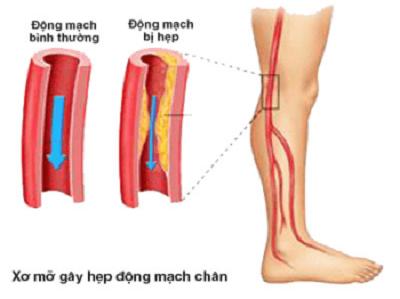 Biến chứng của xơ vữa động mạch 2