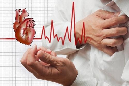 Rối loạn nhịp tim là biến chứng của nhồi máu cơ tim