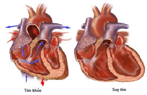 Suy tim là biến chứng nguy hiểm của nhồi máu cơ tim
