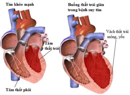 Bố mẹ bạn có đang mắc suy tim?