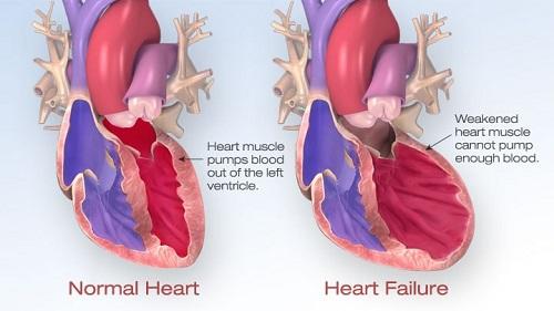 Suy tim là con đường chung của hầu hết các bệnh lý về tim mạch