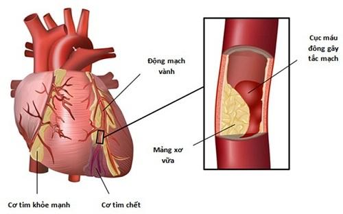 Nhồi máu cơ tim là một thể lâm sàng cơn đau thắt ngực