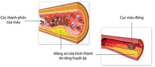 Các nguy cơ sau khi đặt stent hoặc phẫu thuật bắc cầu nối