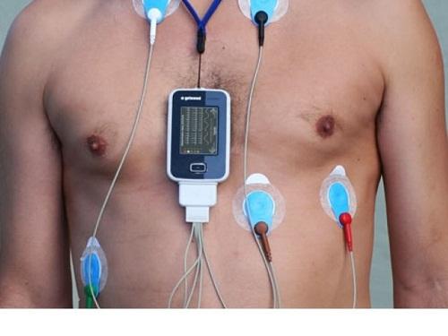 Đo điện tim holter 24h giúp chẩn đoán bệnh mạch vành