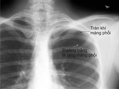 Chẩn đoán phân biệt nhồi máu cơ tim với tràn khí màng phổi