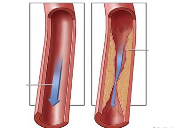 Chỉ định đặt stent mạch vành trong những trường hợp nào?