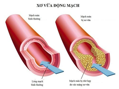 Có phải Cholesterol nào cũng gây xơ vữa động mạch? 2