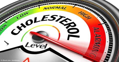 Có phải Cholesterol nào cũng gây xơ vữa động mạch?