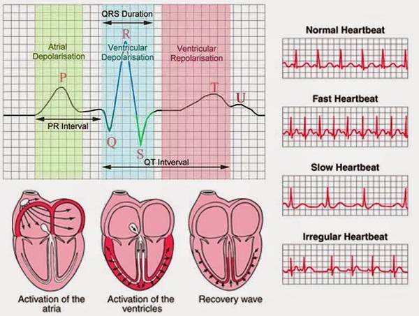 Điện tâm đồ chuẩn đoán nhiều bệnh tim mạch