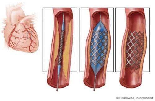 Đặt stent là phương pháp điều trị bệnh mạch vành hay được sử dụng