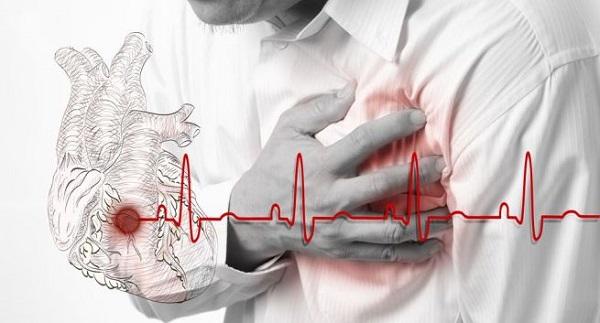 Biểu hiện của bệnh thiếu máu cơ tim
