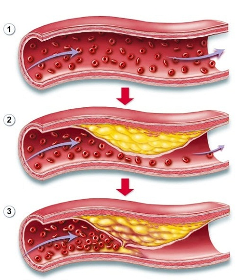 Bệnh xơ vữa động mạch vành là nguyên nhân gây nhồi máu cơ tim