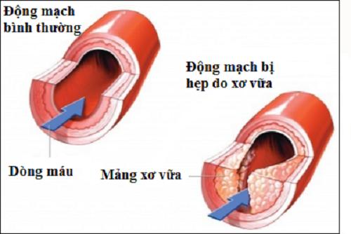 Yếu tố nguy cơ gây bên bệnh xơ vữa động mạch
