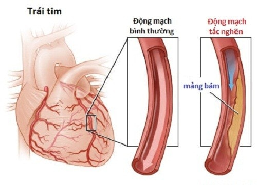 Bệnh động mạch vành là nguyên nhân dẫn đến suy tim trái