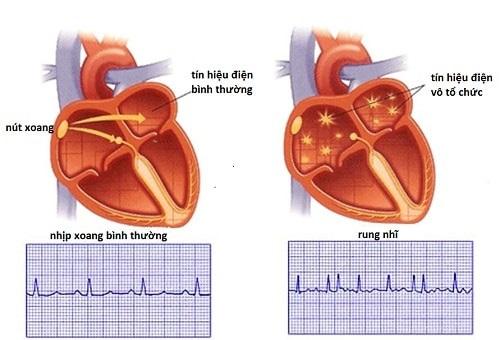 Rung nhĩ là một trong những nguyên nhân gây rối loạn nhịp tim ở trẻ nhỏ