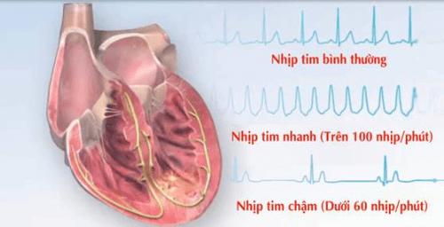 Những nguyên nhân gây suy tim cần phải cảnh giác 2