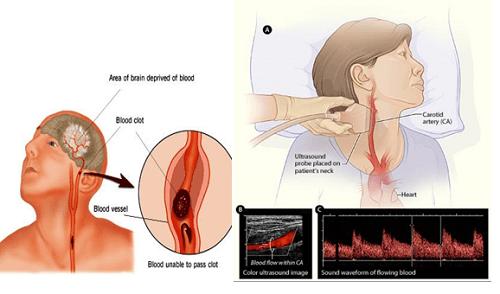 Siêu âm động mạch cảnh giúp chẩn đoán xơ vữa động mạch cảnh