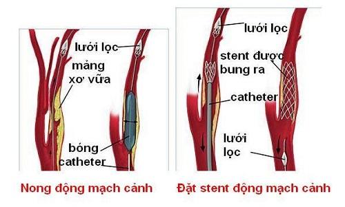 Phương pháp nong và đặt stent động mạch cảnh