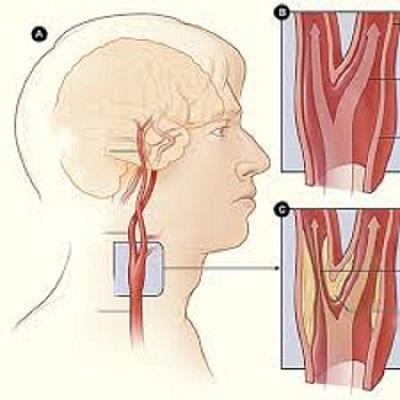 Các mảng xơ vữa ở động mạch cảnh