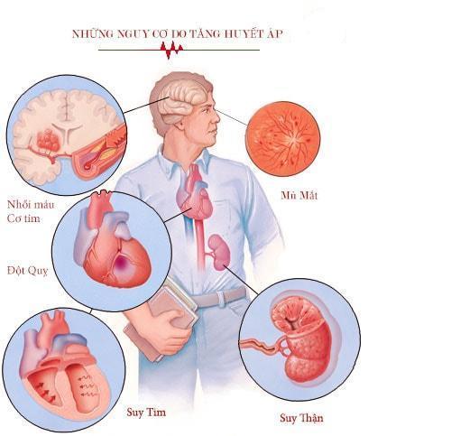 Tăng huyết áp cấp tính gây nhiều biến chứng nặng nề