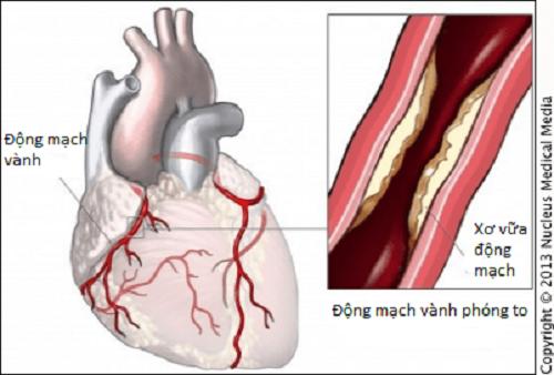 Phòng bệnh mạch vành hiệu quả