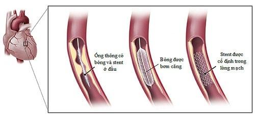 """Bệnh mạch vành vẫn chưa """"xong"""" sau đặt stent"""