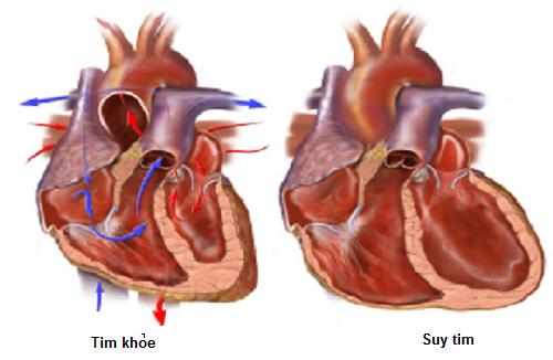 Phân biệt sự khác nhau giữa nhồi máu cơ tim và suy tim