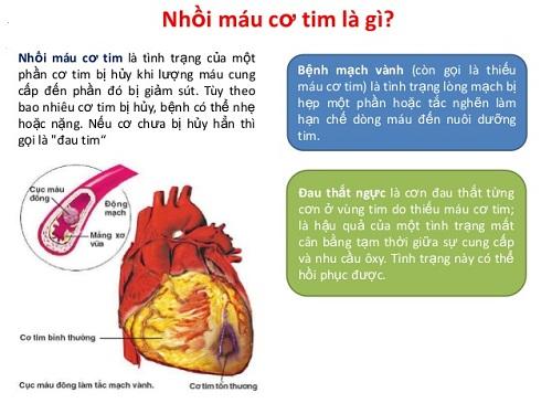 Sự khác nhau giữa nhồi máu cơ tim và suy tim