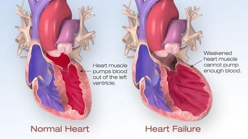 Suy tim cấp , nỗi lo thường trực của tất cả bệnh nhân tim mạch