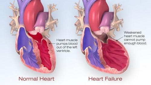 Thế nào là suy tim cấp?